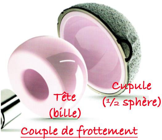 Prothèse totale de Hanche : Couple et Frottement