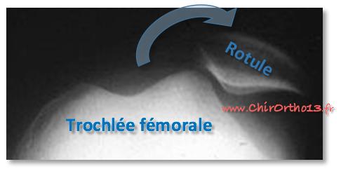 Radiographie d'une luxation de la rotule