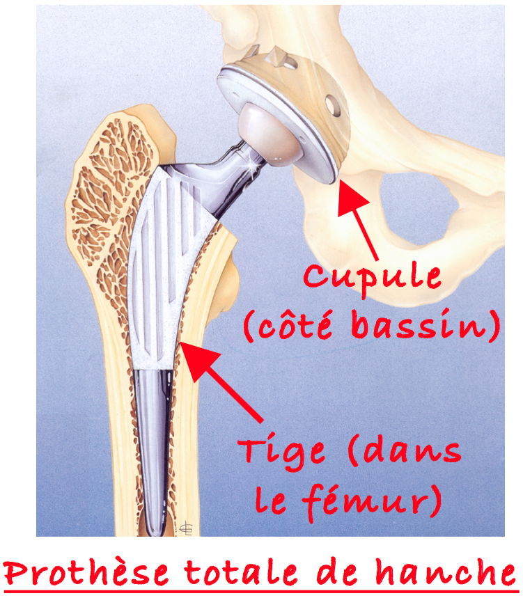 Prothèse totale de Hanche : Tige et Cupule