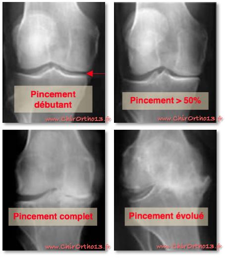 Stadartros arthrose du genou