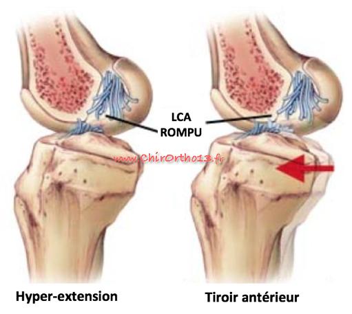 Rupture du ligament croisé antérieur et reconstruction en chirurgie ambulatoire DT4