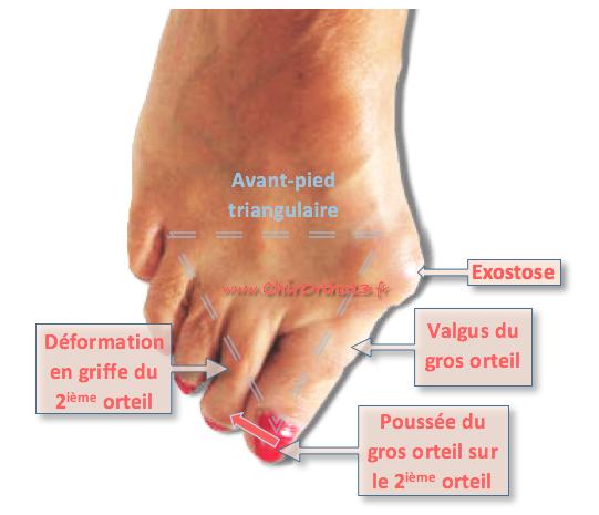Hallux for Douleur sur le cote exterieur du pied