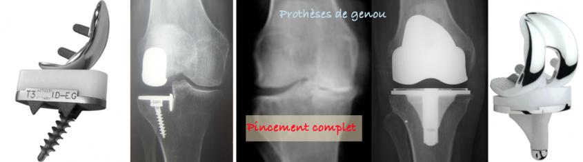 chirurgie spéciale ligament genoux
