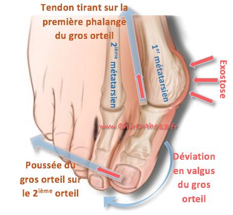 douleur sous le pouce du pied