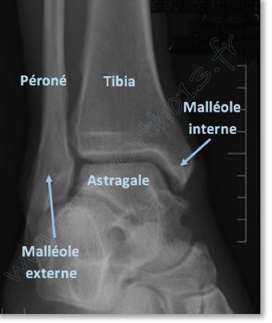 Séquelles des entorses de cheville [et autres douleurs de l ...